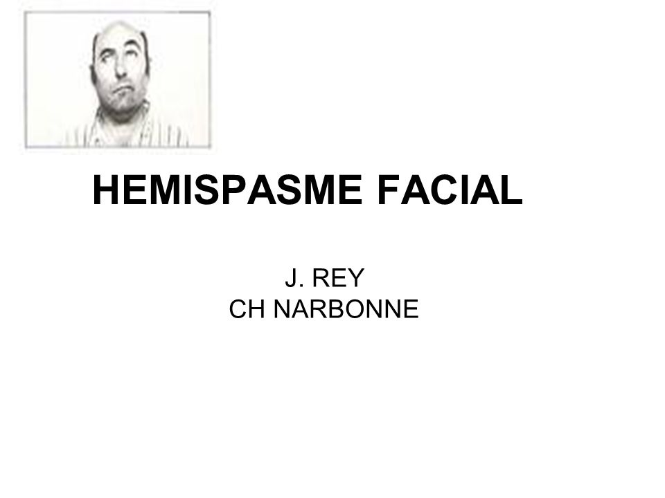 HEMISPASME FACIAL J. REY CH NARBONNE