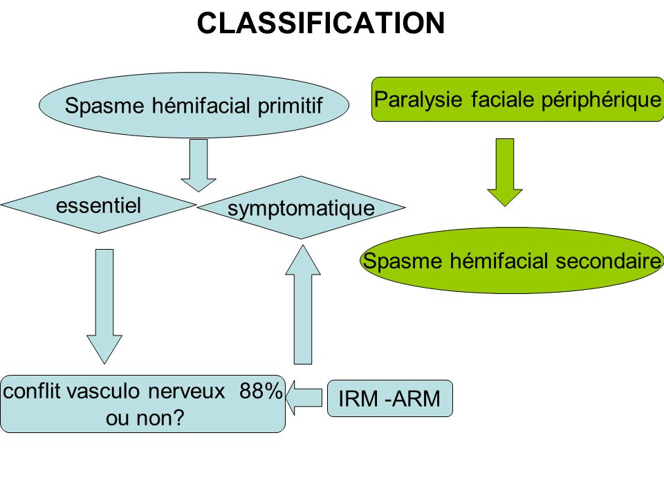 CLASSIFICATION Spasme hémifacial primitif