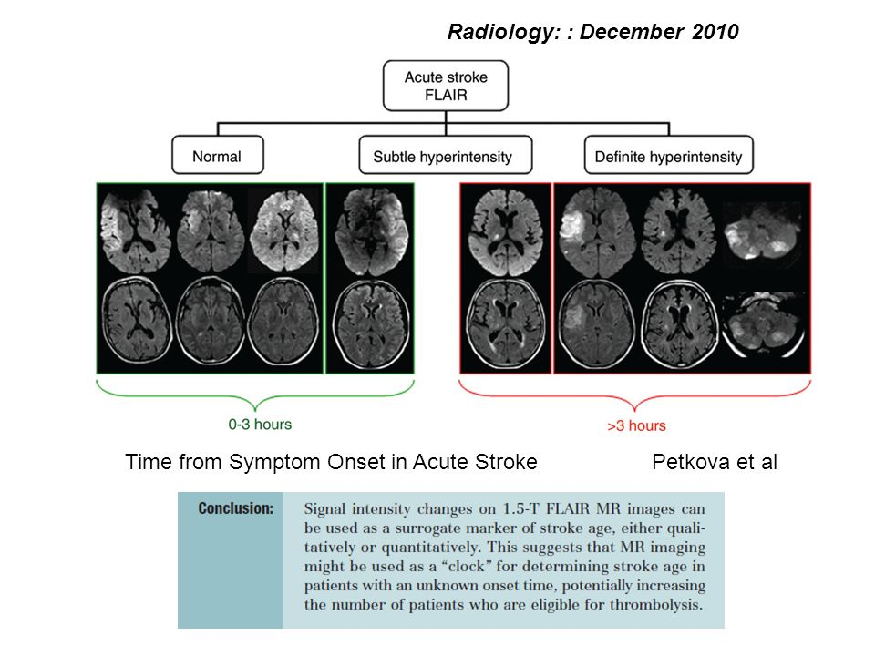 Radiology: : December 2010 Time from Symptom Onset in Acute Stroke Petkova et al
