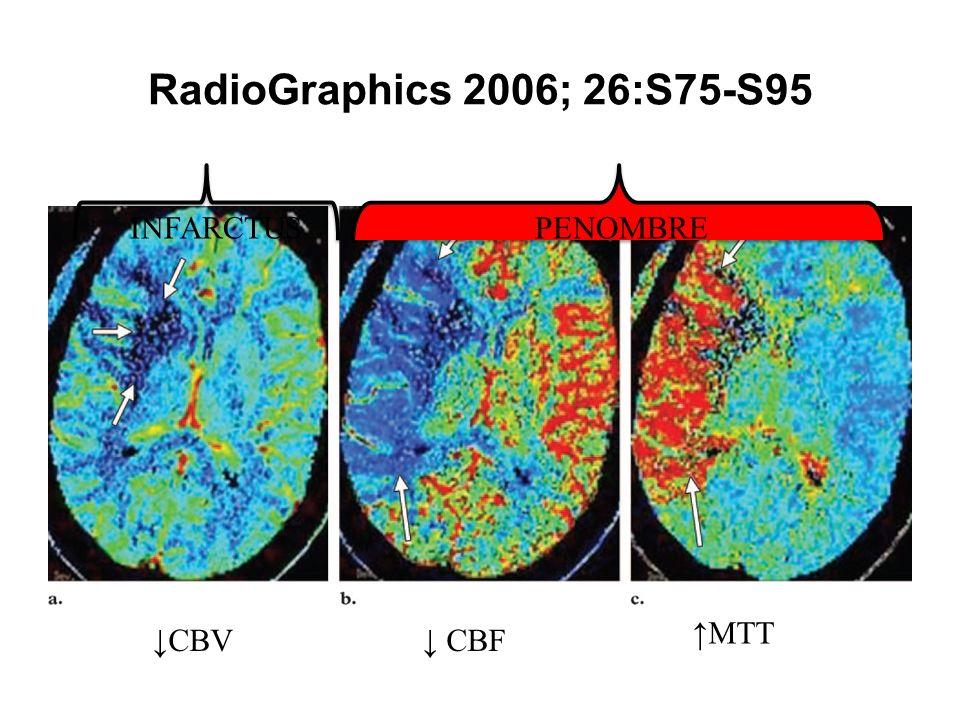 P RadioGraphics 2006; 26:S75-S95 INFARCTUS PENOMBRE ↑MTT ↓CBV ↓ CBF 7
