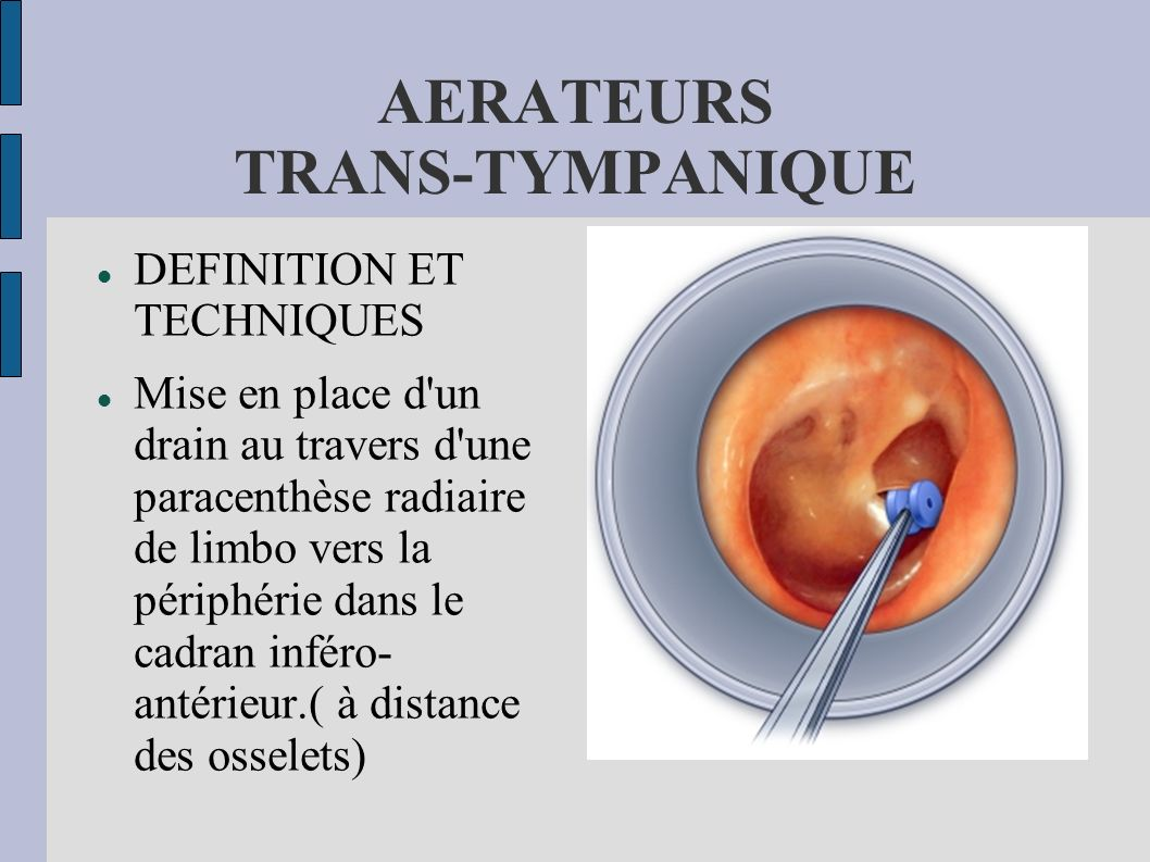 AERATEURS TRANS-TYMPANIQUE