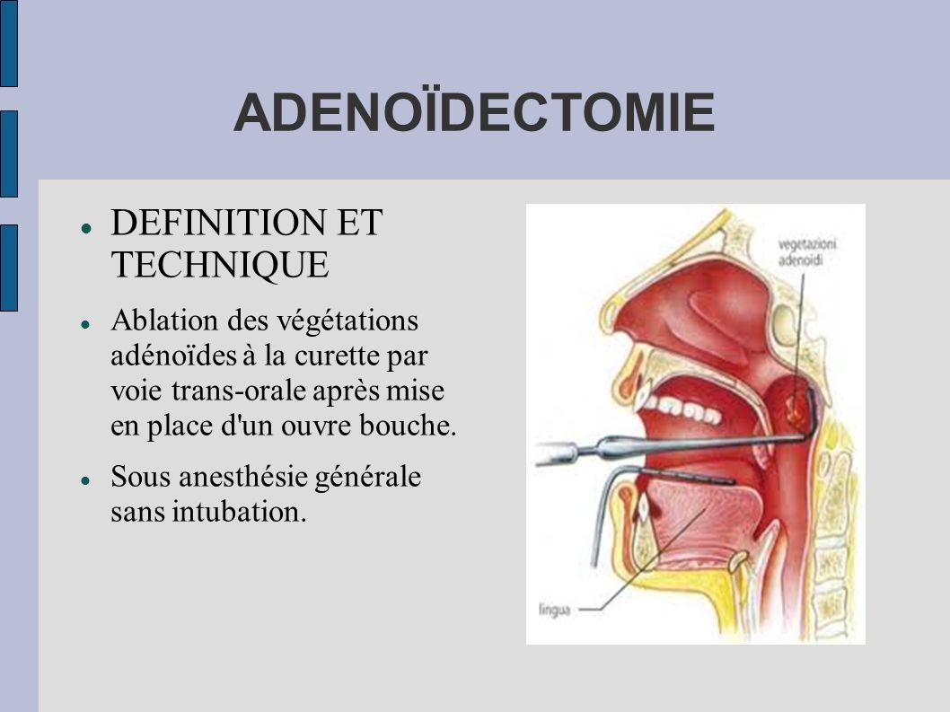 ADENOÏDECTOMIE DEFINITION ET TECHNIQUE