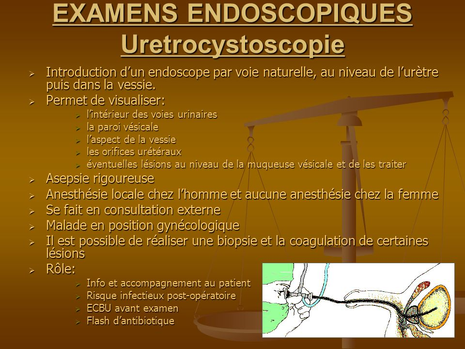 EXAMENS ENDOSCOPIQUES Uretrocystoscopie