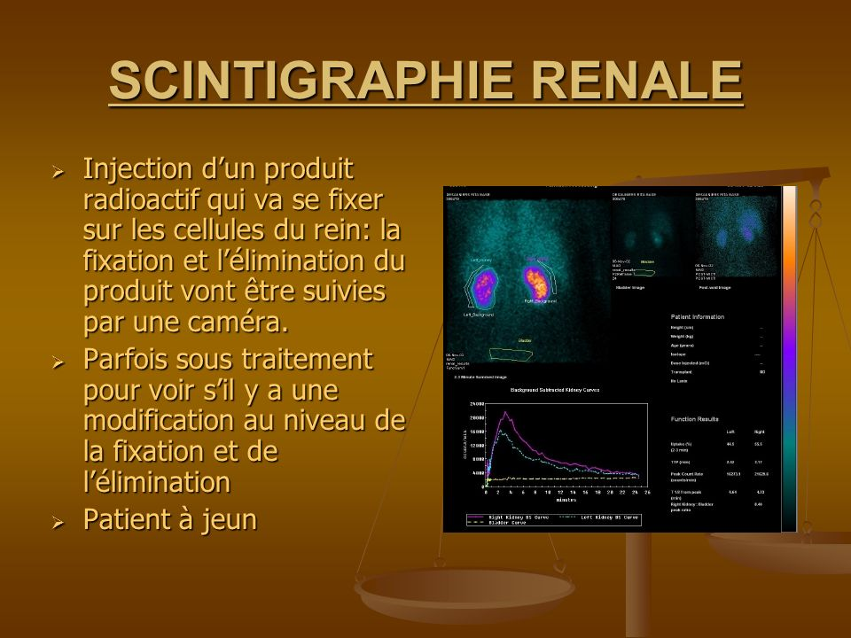 SCINTIGRAPHIE RENALE