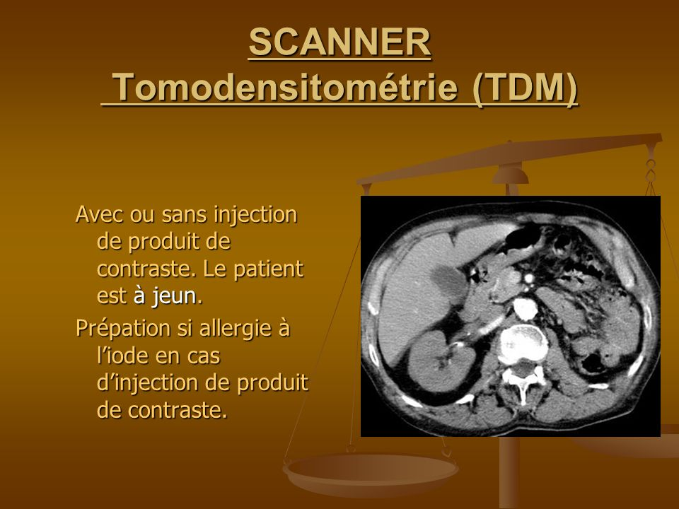 SCANNER Tomodensitométrie (TDM)