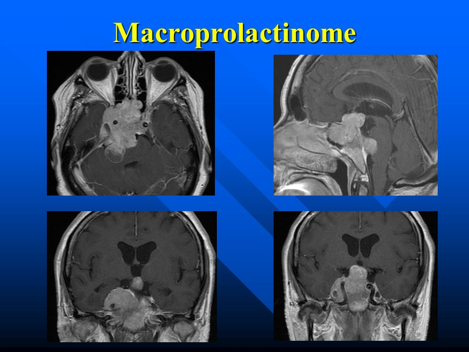 Macroprolactinome