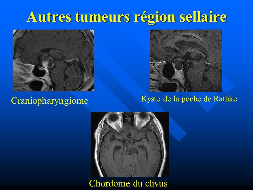 Autres tumeurs région sellaire