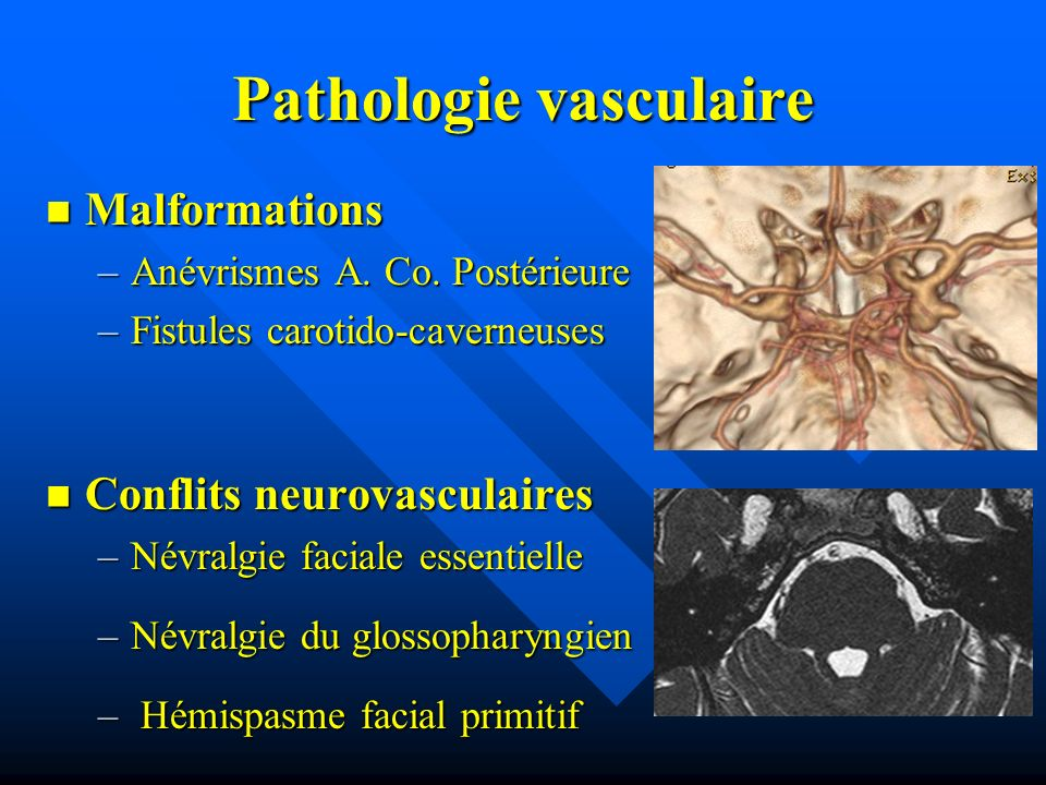 Pathologie vasculaire