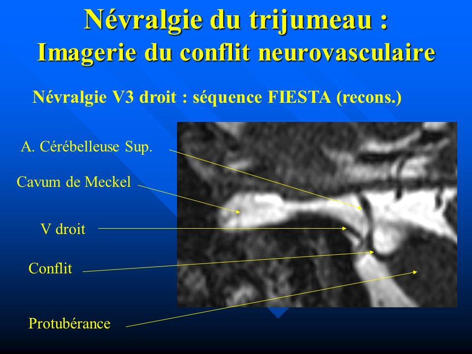 Névralgie du trijumeau : Imagerie du conflit neurovasculaire