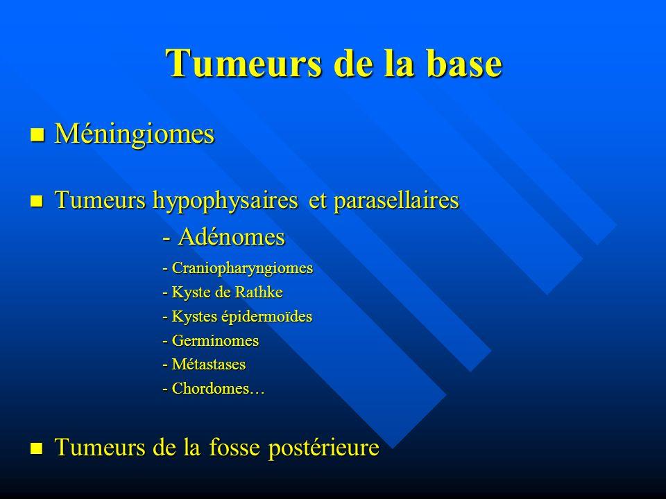 Tumeurs de la base Méningiomes Tumeurs hypophysaires et parasellaires