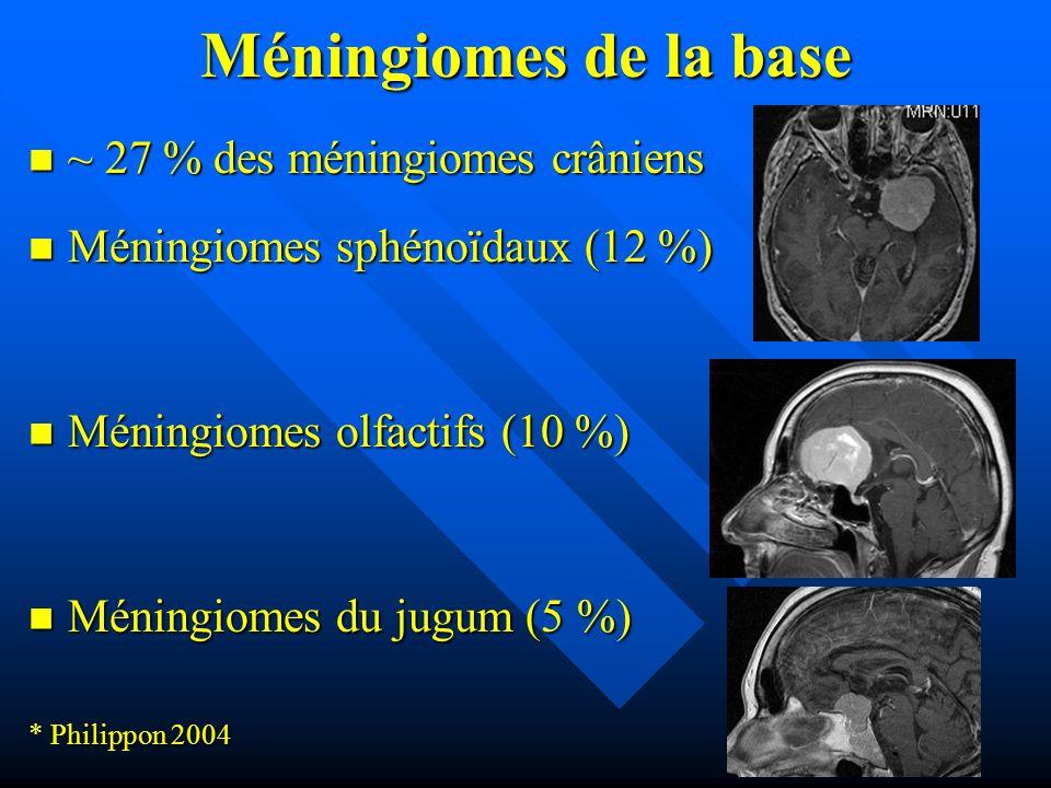 Méningiomes de la base ~ 27 % des méningiomes crâniens