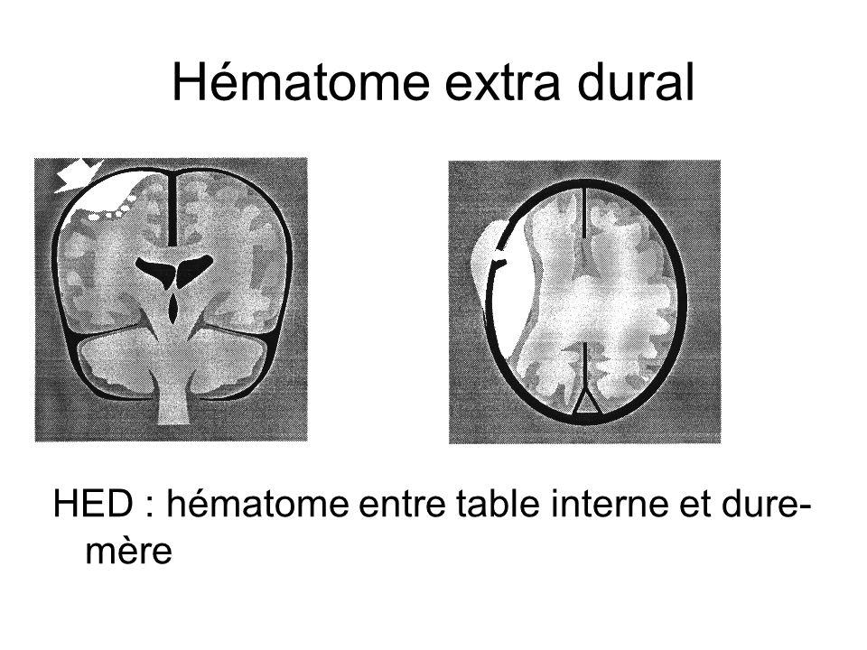 Hématome extra dural HED : hématome entre table interne et dure-mère