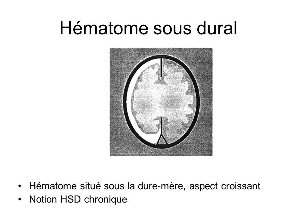 Hématome sous dural Hématome situé sous la dure-mère, aspect croissant