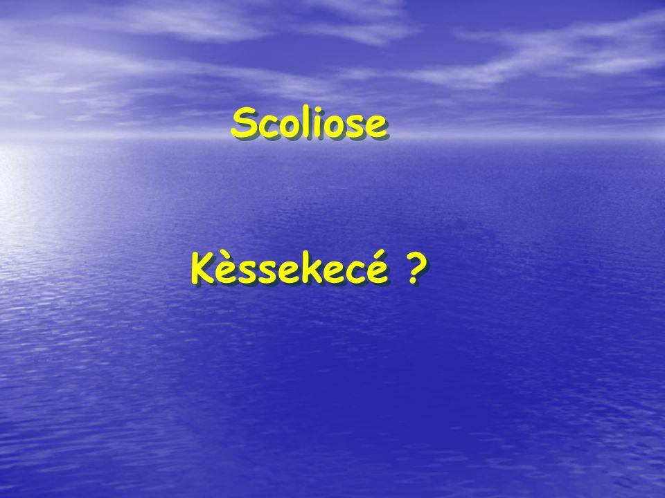 Scoliose Kèssekecé