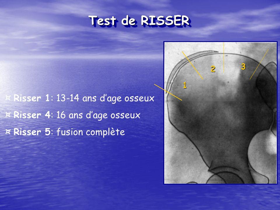 Test de RISSER ¤ Risser 1: 13-14 ans d'age osseux