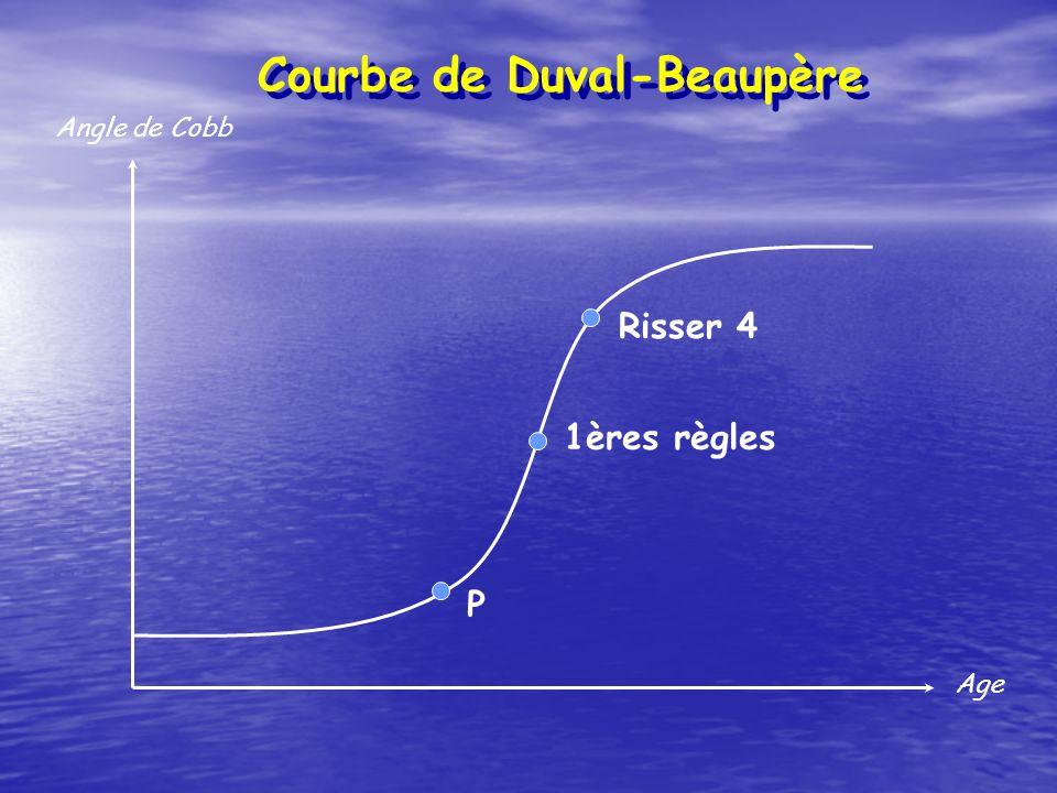 Courbe de Duval-Beaupère