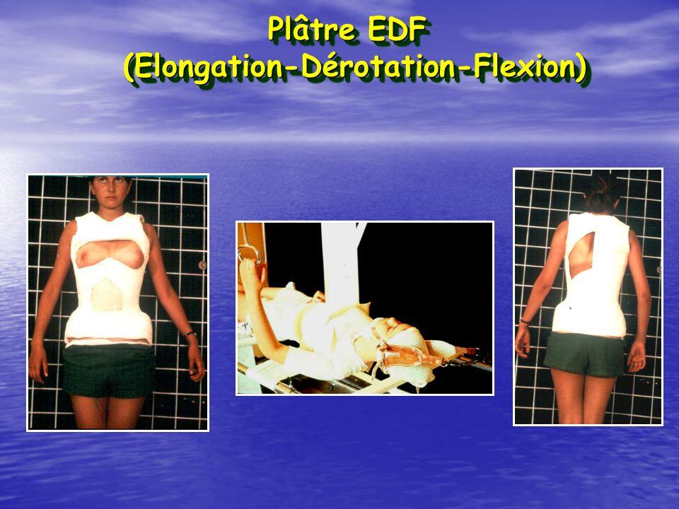 (Elongation-Dérotation-Flexion)