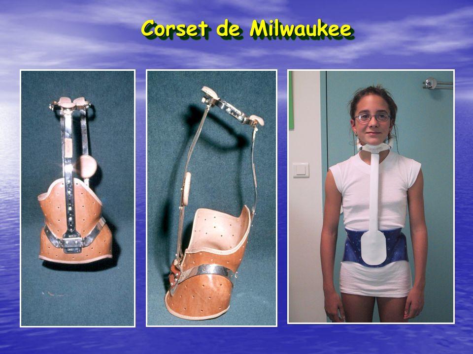 Corset de Milwaukee