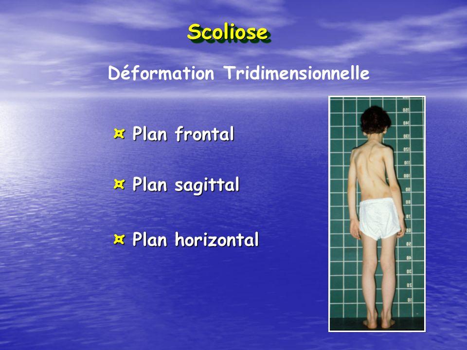Scoliose Déformation Tridimensionnelle ¤ Plan frontal ¤ Plan sagittal