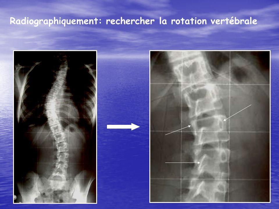 Radiographiquement: rechercher la rotation vertébrale