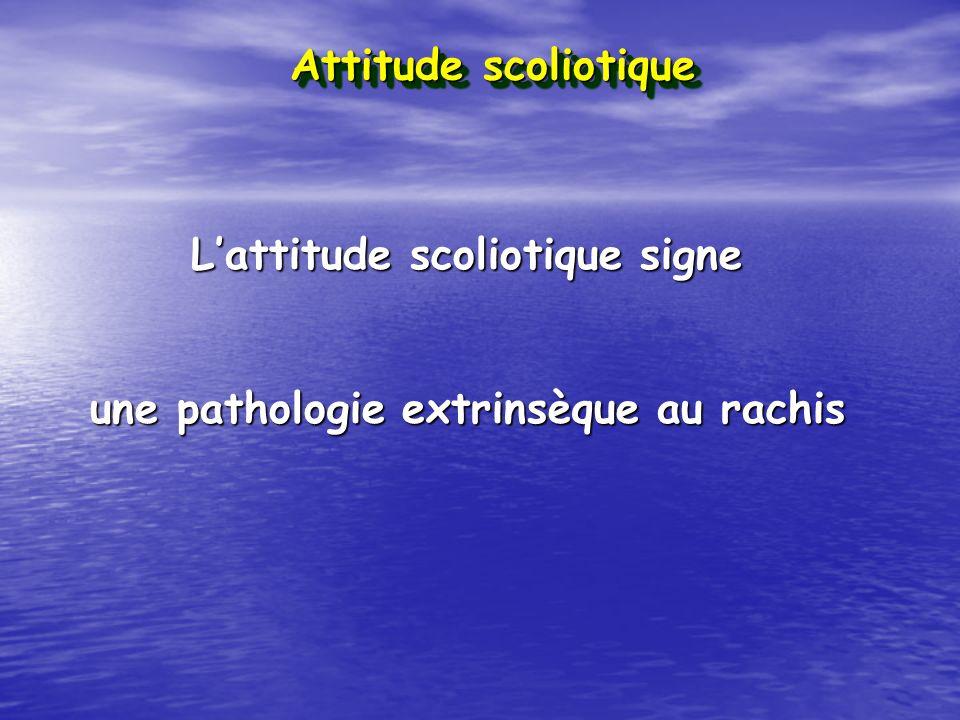 L'attitude scoliotique signe une pathologie extrinsèque au rachis
