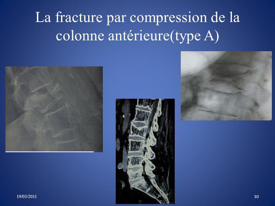 La fracture par compression de la colonne antérieure(type A)