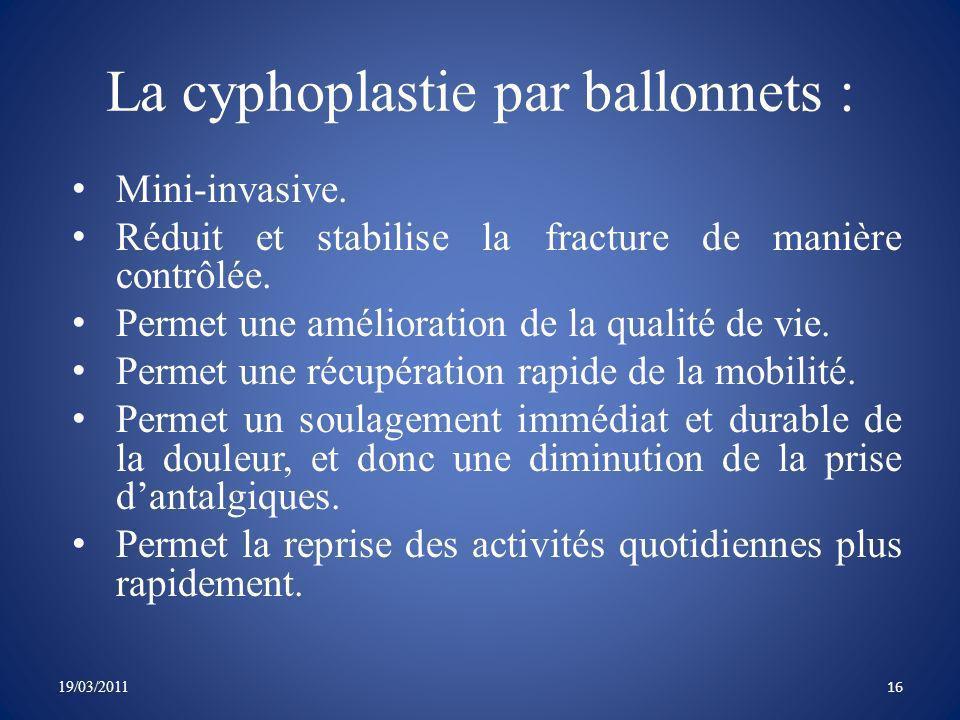 La cyphoplastie par ballonnets :