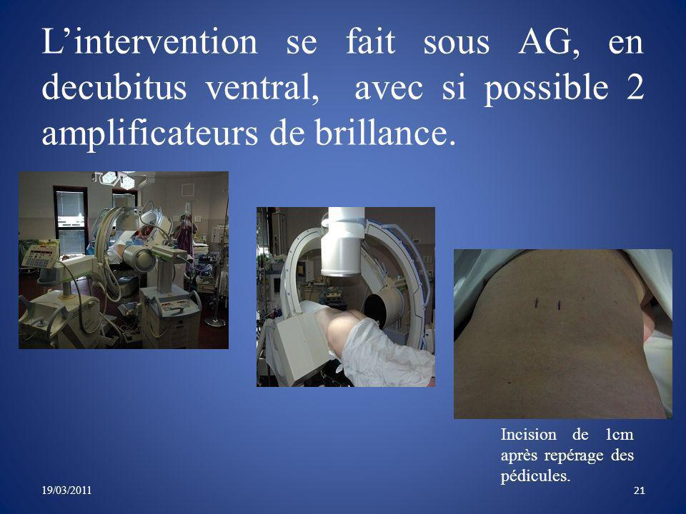 L'intervention se fait sous AG, en decubitus ventral, avec si possible 2 amplificateurs de brillance.