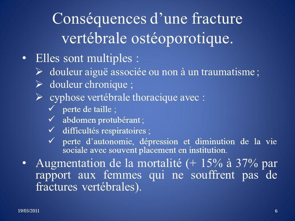 Conséquences d'une fracture vertébrale ostéoporotique.