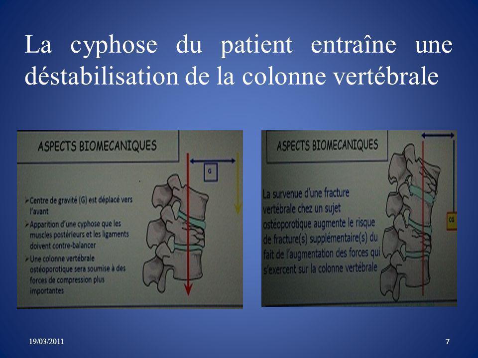 La cyphose du patient entraîne une déstabilisation de la colonne vertébrale