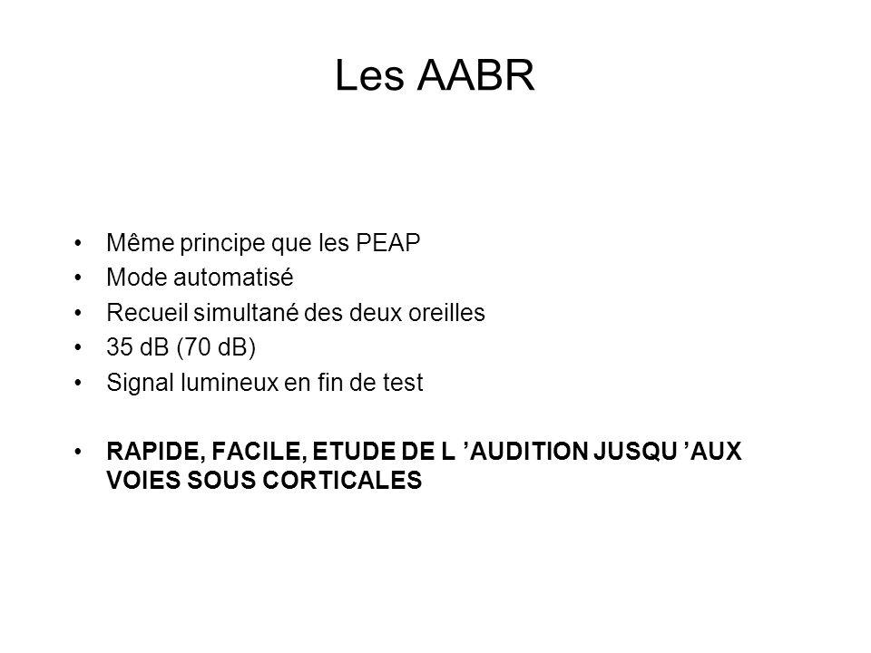 Les AABR Même principe que les PEAP Mode automatisé