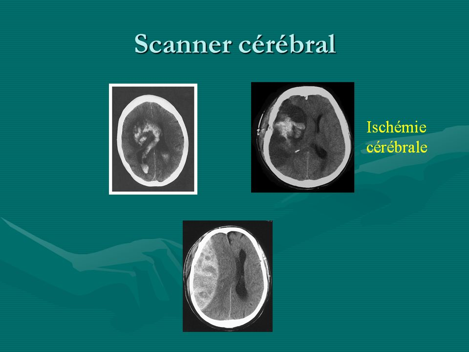 Scanner cérébral