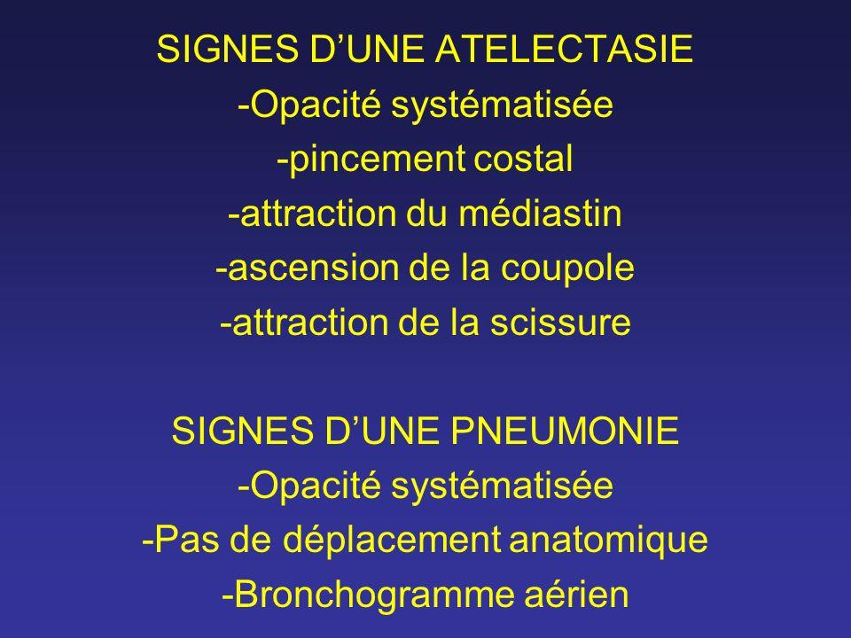 SIGNES D'UNE ATELECTASIE -Opacité systématisée -pincement costal