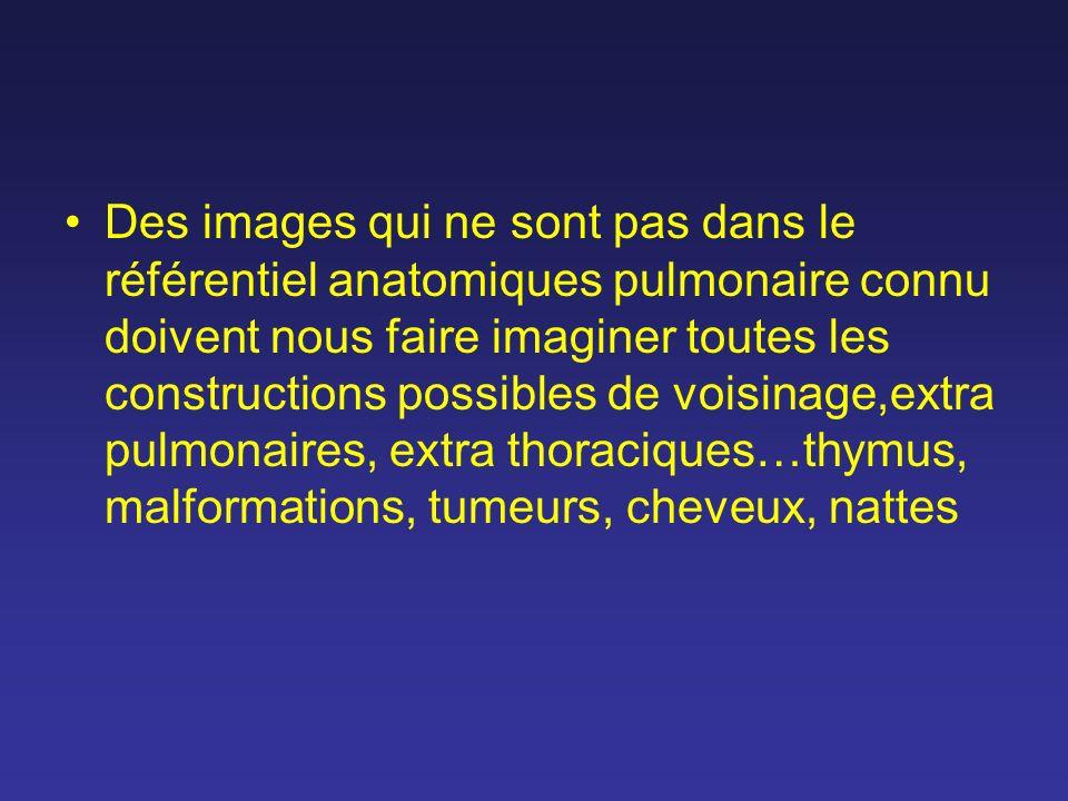 Des images qui ne sont pas dans le référentiel anatomiques pulmonaire connu doivent nous faire imaginer toutes les constructions possibles de voisinage,extra pulmonaires, extra thoraciques…thymus, malformations, tumeurs, cheveux, nattes