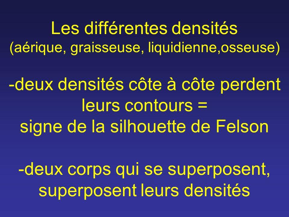 Les différentes densités (aérique, graisseuse, liquidienne,osseuse) -deux densités côte à côte perdent leurs contours = signe de la silhouette de Felson -deux corps qui se superposent, superposent leurs densités