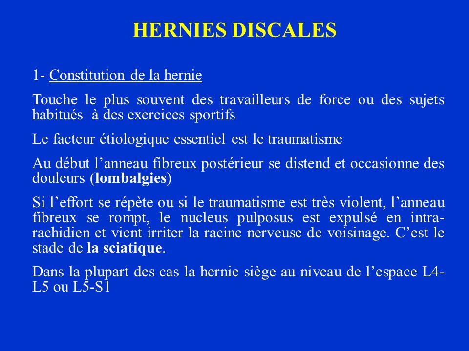 HERNIES DISCALES 1- Constitution de la hernie