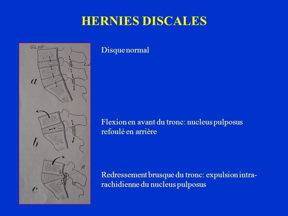 HERNIES DISCALES Disque normal