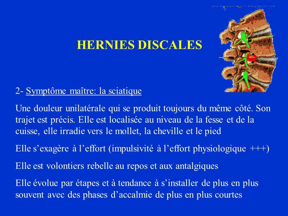HERNIES DISCALES 2- Symptôme maître: la sciatique