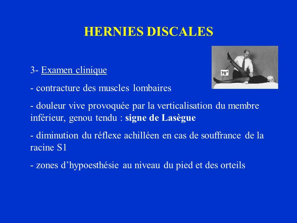 HERNIES DISCALES 3- Examen clinique