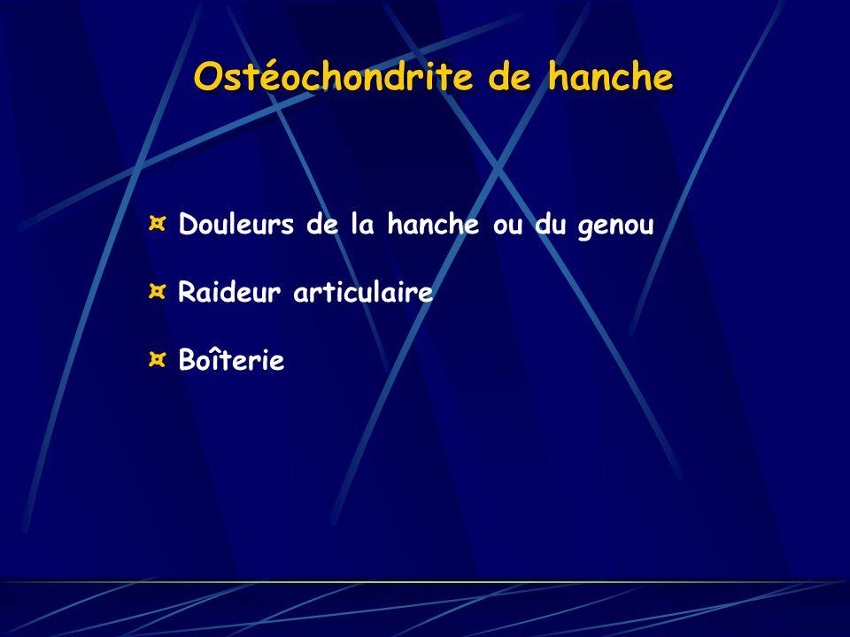 Ostéochondrite de hanche