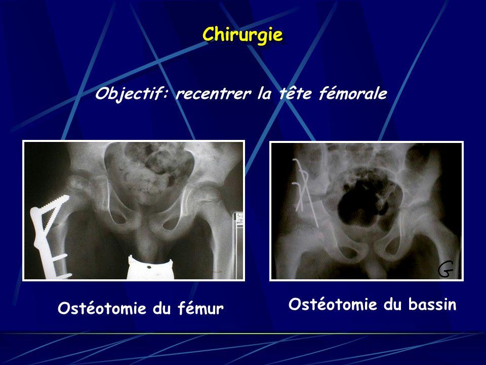 Chirurgie Objectif: recentrer la tête fémorale Ostéotomie du bassin