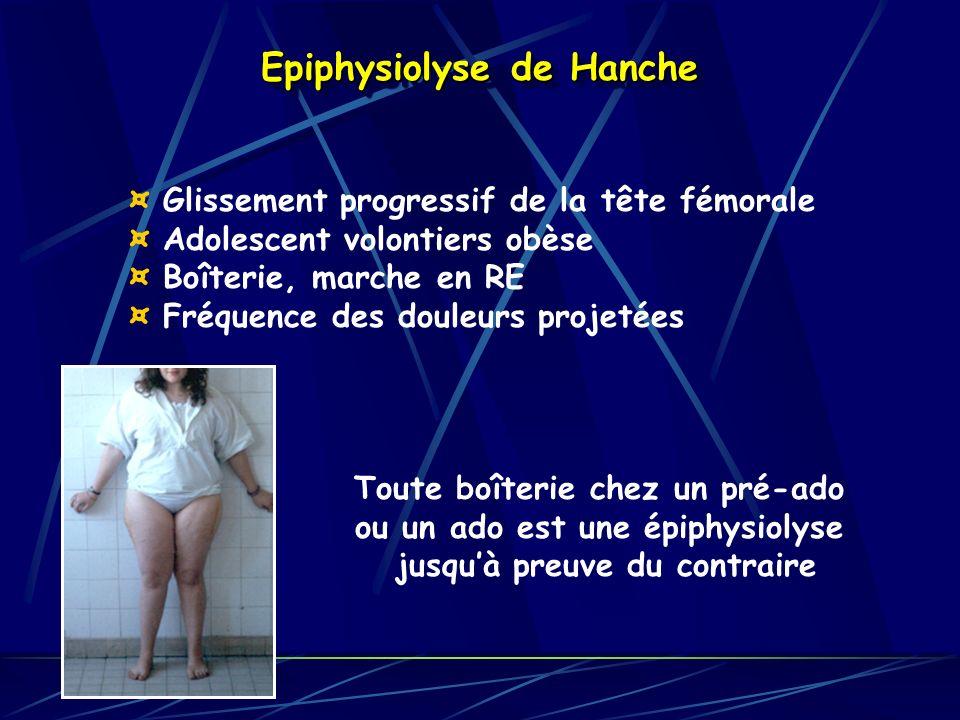Epiphysiolyse de Hanche