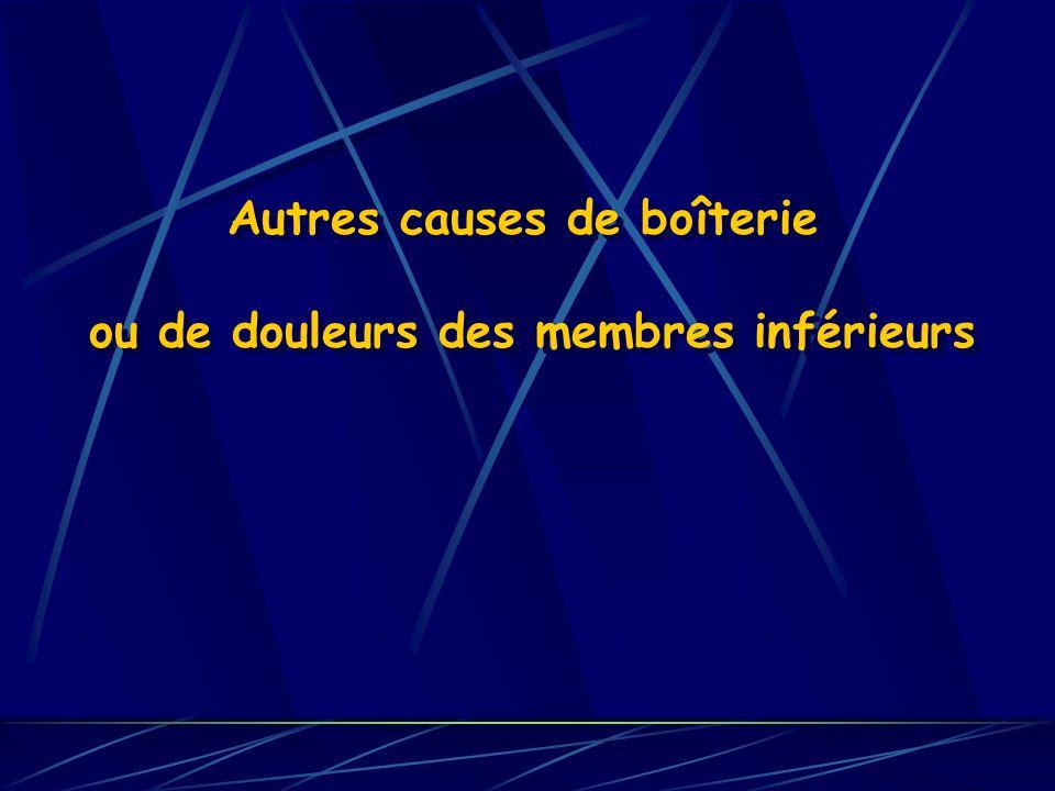 Autres causes de boîterie ou de douleurs des membres inférieurs