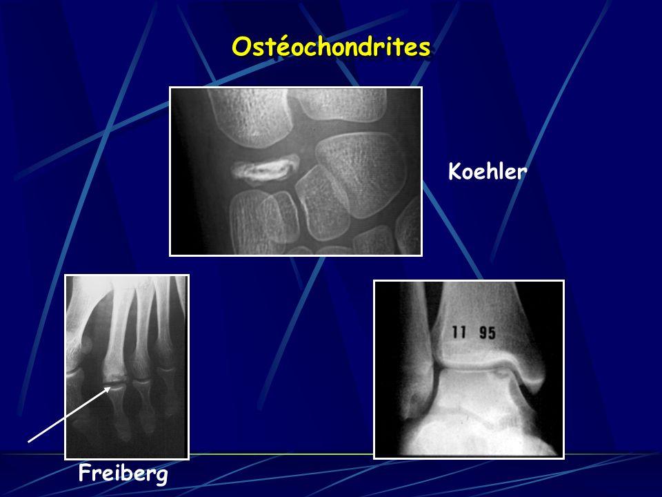 Ostéochondrites Koehler Freiberg