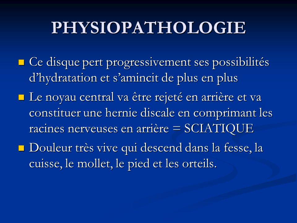 PHYSIOPATHOLOGIE Ce disque pert progressivement ses possibilités d'hydratation et s'amincit de plus en plus.