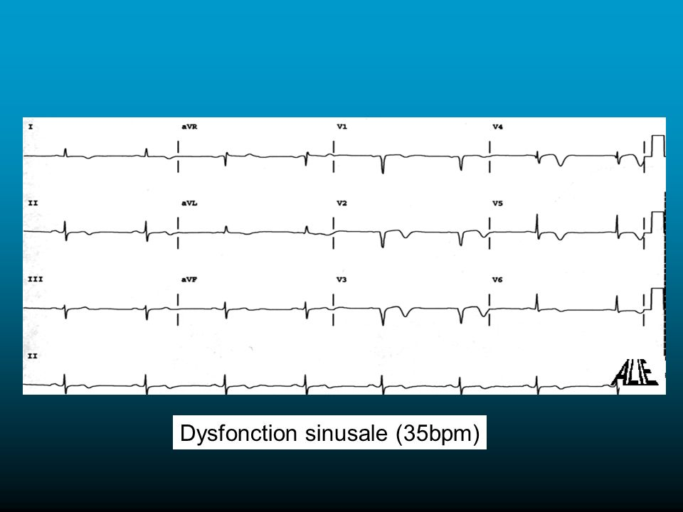 Dysfonction sinusale (35bpm)