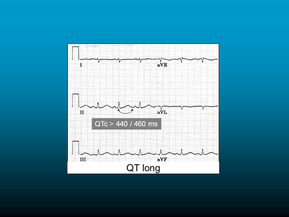 QTc > 440 / 460 ms QT long