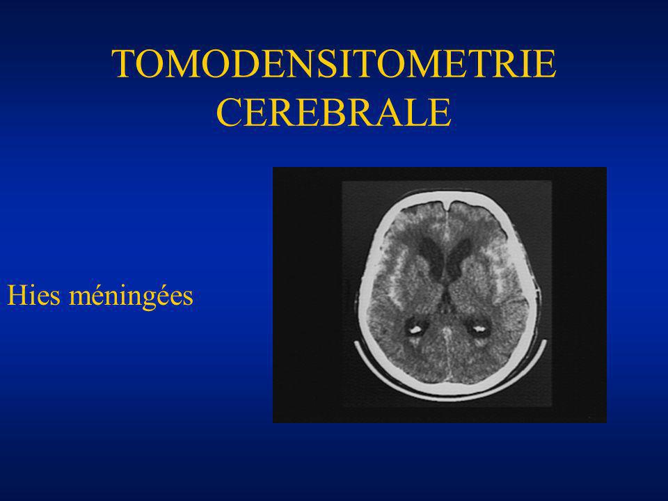 TOMODENSITOMETRIE CEREBRALE