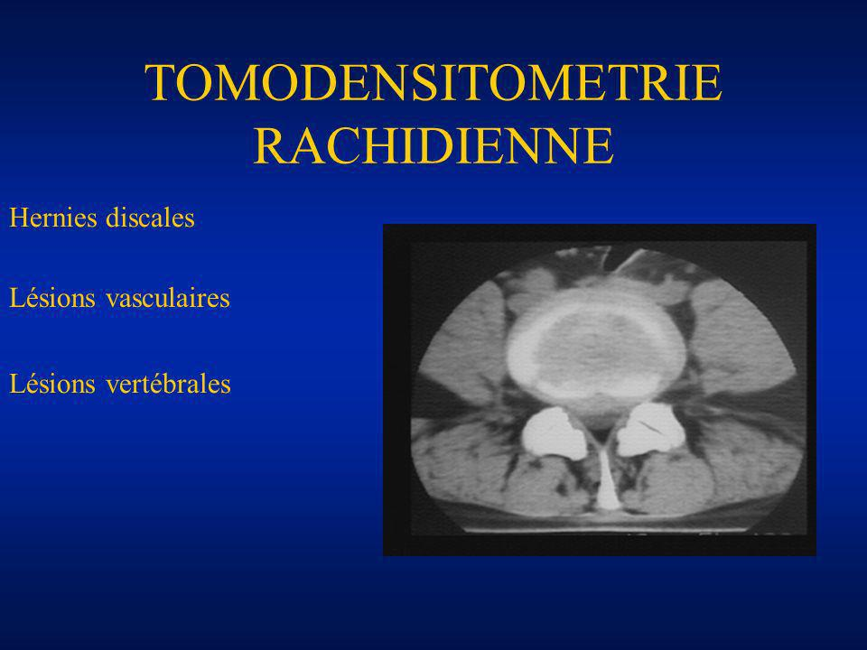 TOMODENSITOMETRIE RACHIDIENNE
