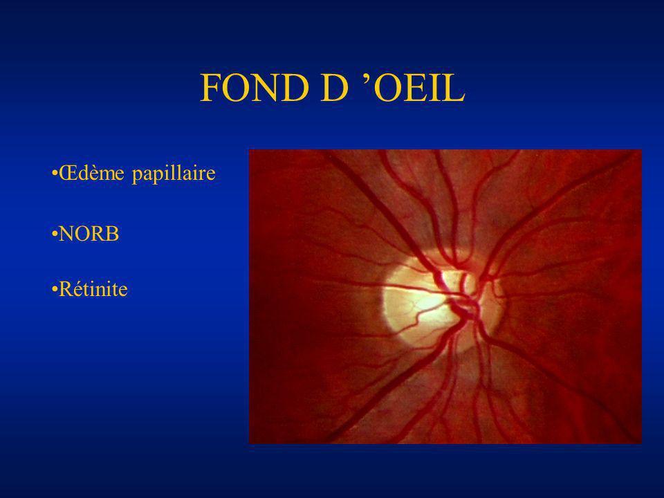 FOND D 'OEIL Œdème papillaire NORB Rétinite